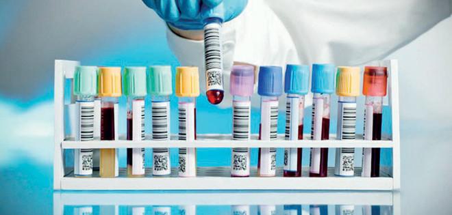 2cf81b77b «الصحة»: القطاع الخاص لا يكشف عن المتعاطين للمخدرات إلا في وظائف معينة