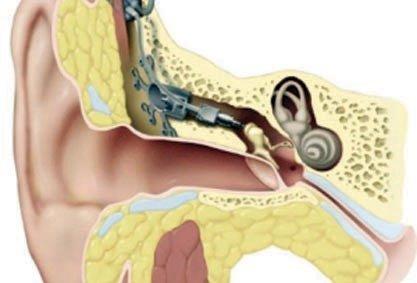 التهابات الأذن المتكررة قد تسبب الصمم والكشف يتم بالمنظار صحيفة الاقتصادية