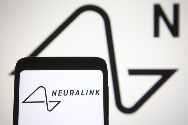 """""""نيورالينك""""  المتخصصة في علوم الأعصاب تجمع 205 مليون دولار"""