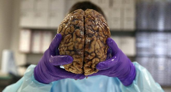 طبيب يشرح سبب تأثير كورونا في الدماغ