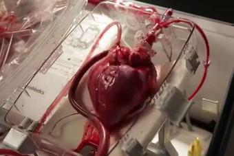 إبقاء قلب بصورة حية خارج الجسم 24 ساعة..تكنولوجيا قد تصبح متاحة للإنسان خلال سنة