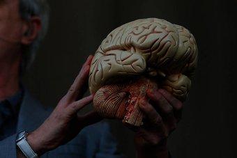 الدماغ البشري بدأ بالتطور قبل 1.7 مليون عام